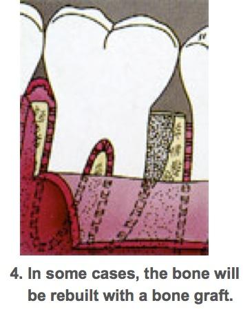 Perio surgeries 4