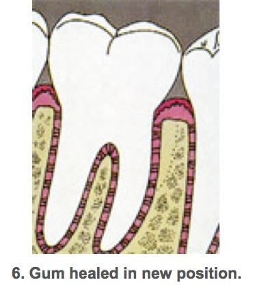 Perio surgeries 6