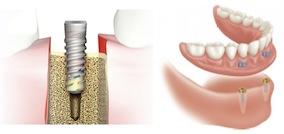 Implantandoverdenture