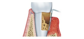Periodontialtreatments